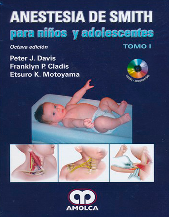 Anestesia de Smith para niños y adolescentes