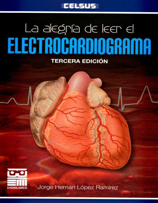 La Alegría de leer el electrocardiograma