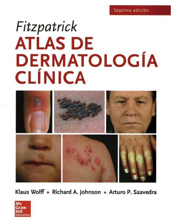 Fitzpatrick Atlas de dermatología clínica