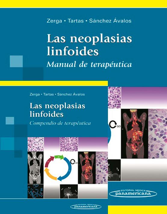 Las neoplasias linfoides. Compendio de terapéutica