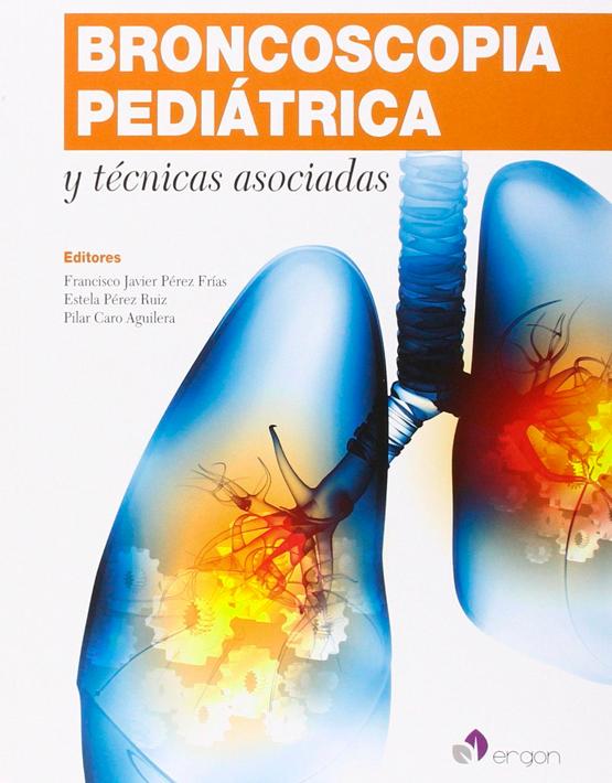 Broncoscopia pediátrica y técnicas asociadas