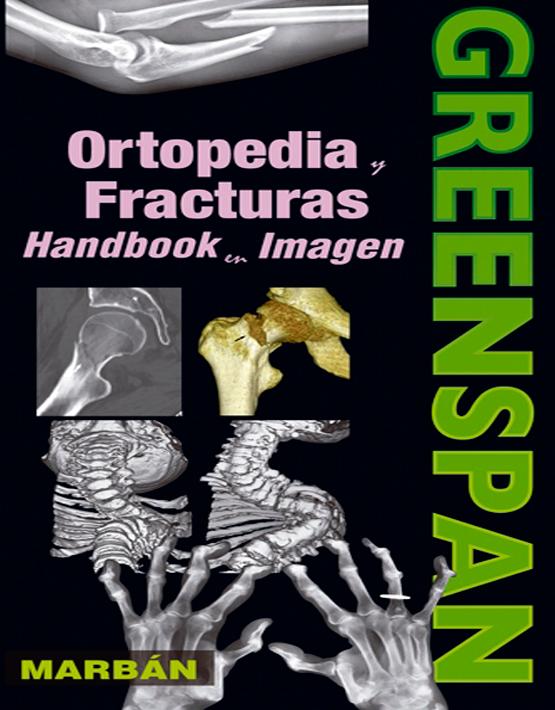 Greenspan Ortopedia y fracturas Handbook en imagen