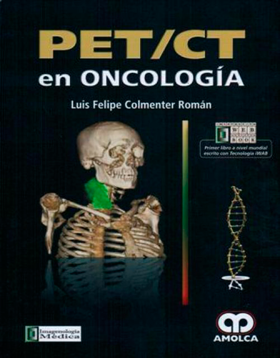 PET/CT en oncología
