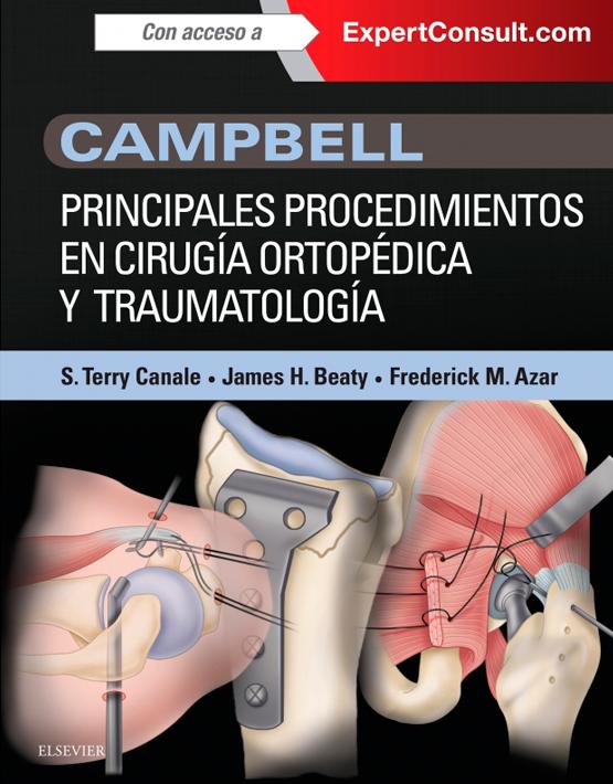 Campbell. Principales procedimientos en cirugía ortopédica y traumatología