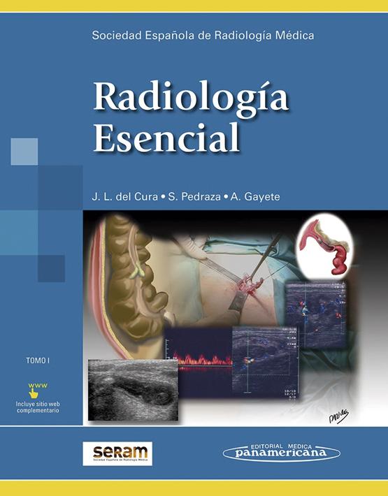 Radiología Esencial - 2 tomos (incluye versión digital)