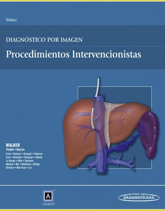 Diagnóstico por Imagen: Procedimientos intervencionistas
