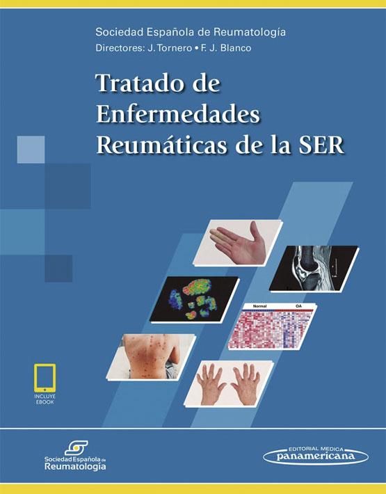 Tratado de Enfermedades Reumáticas de la SER (incluye versión digital)